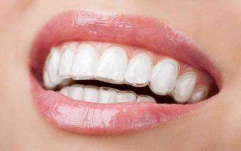 How Long Will It Take to Straighten My Teeth with Braces?